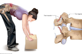 low-back-strains-and-sprains-blog-photo-1