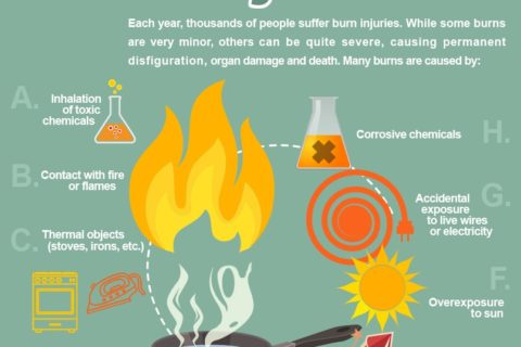 burn-injury-infographic-omaha-injury-attorneys