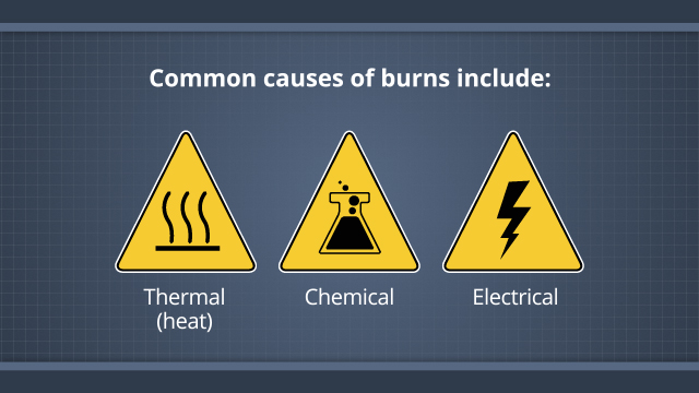 burns-causes